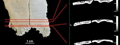 Foto:  Dominguez-Rodrigo M, Pickering TR, Diez-Martin F, Mabulla A, Musiba C, et al. (2012) Earliest Porotic Hyperostosis on a 1.5-Million-Year-Old Hominin, Olduvai Gorge, Tanzania. PLoS ONE 7(10): e46414. doi:10.1371/journal.pone.0046414